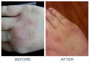eczema skin rashes on babies