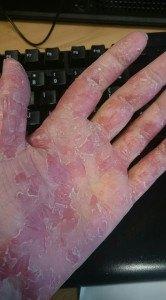 eczema pe spater in german