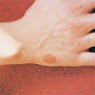 dermatita la caini tratament psoriazis palmar